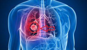 akciger-kanseri-belirtileri