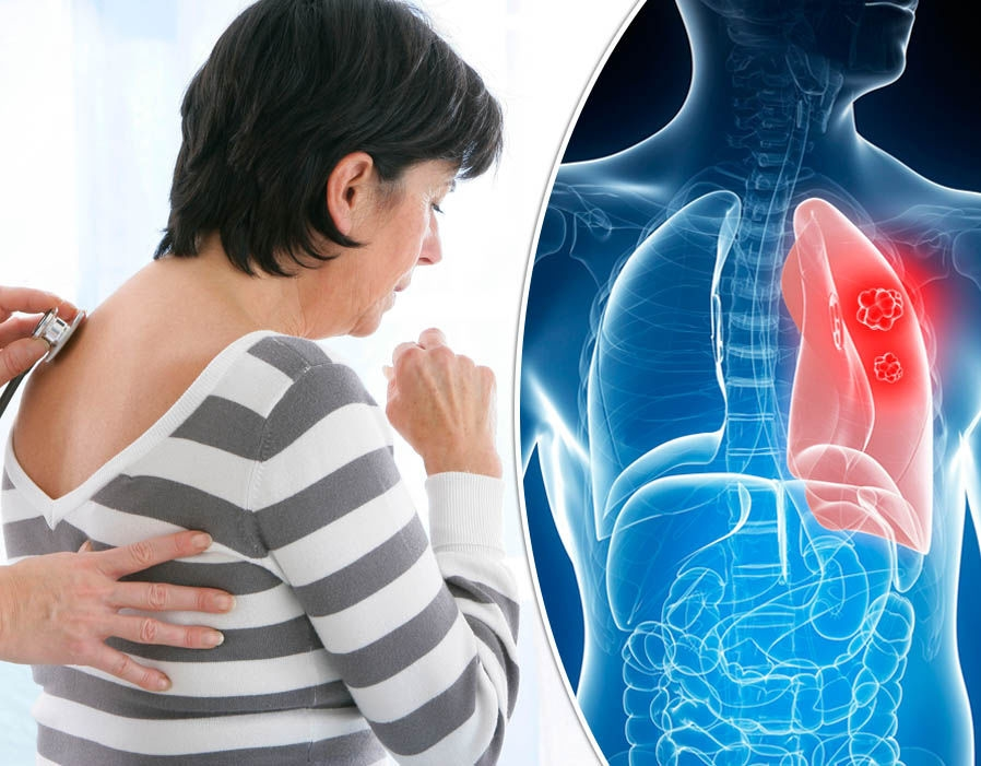 akciger-kanseri-tedavisi-nasil-olur