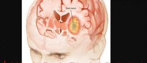 beyin-tumoru-nasil-olusur