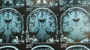 beyin-tumoru-tedavi-yontemleri