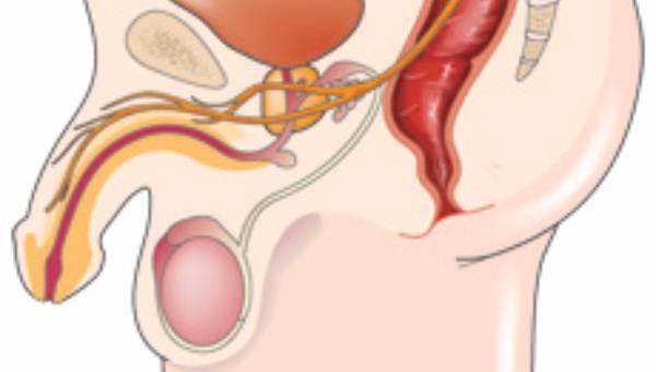testis-kanseri-tedavi-yontemleri